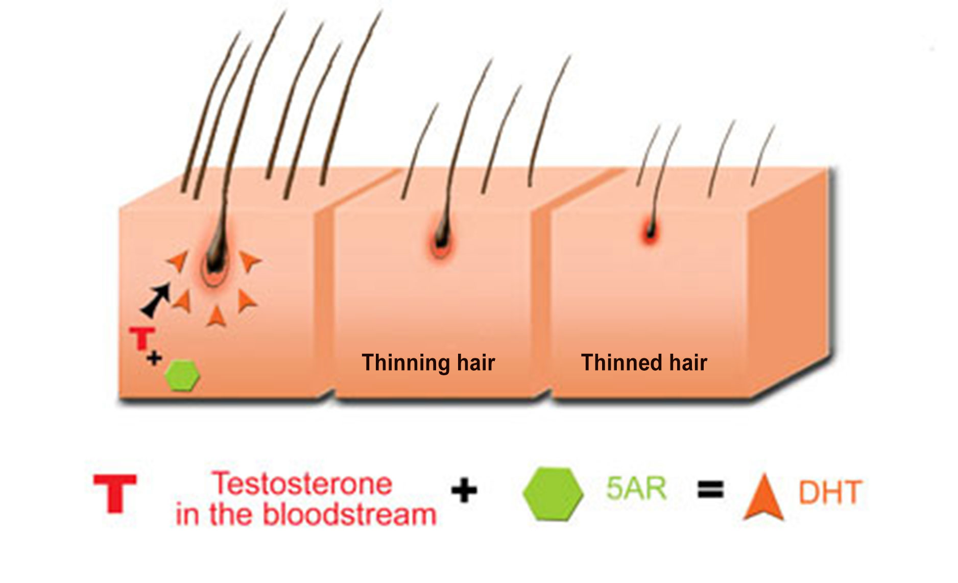 About hair loss > DHT: how does it cause hereditary hair loss?